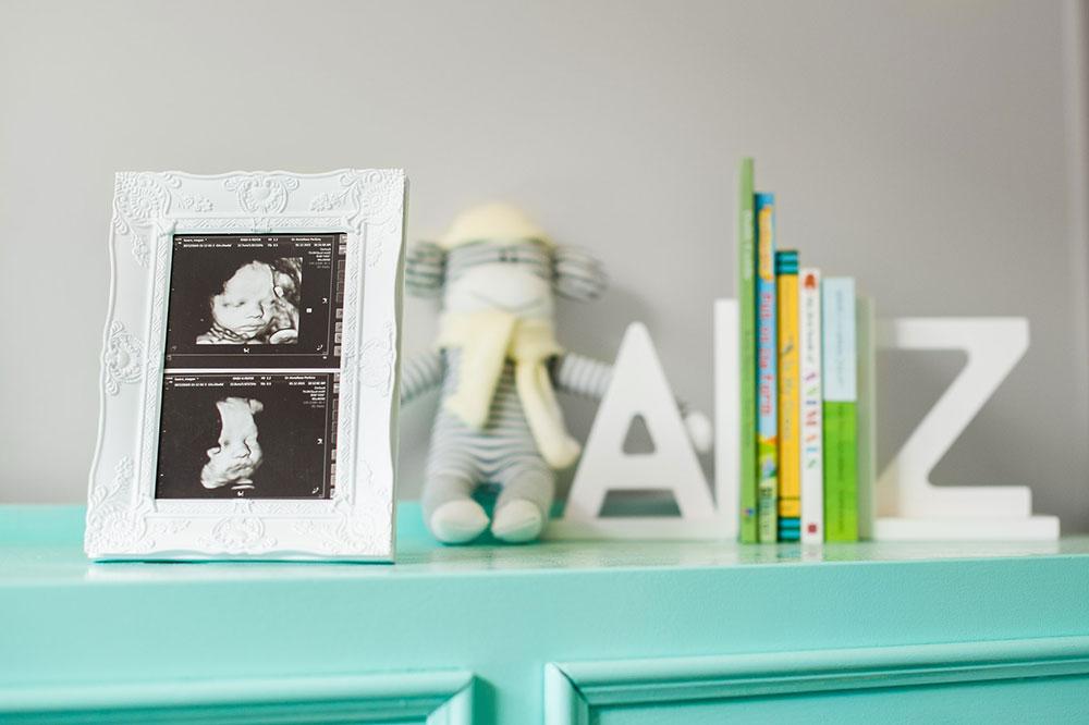 3D-newborn-scan-in-a-frame-in-nursery